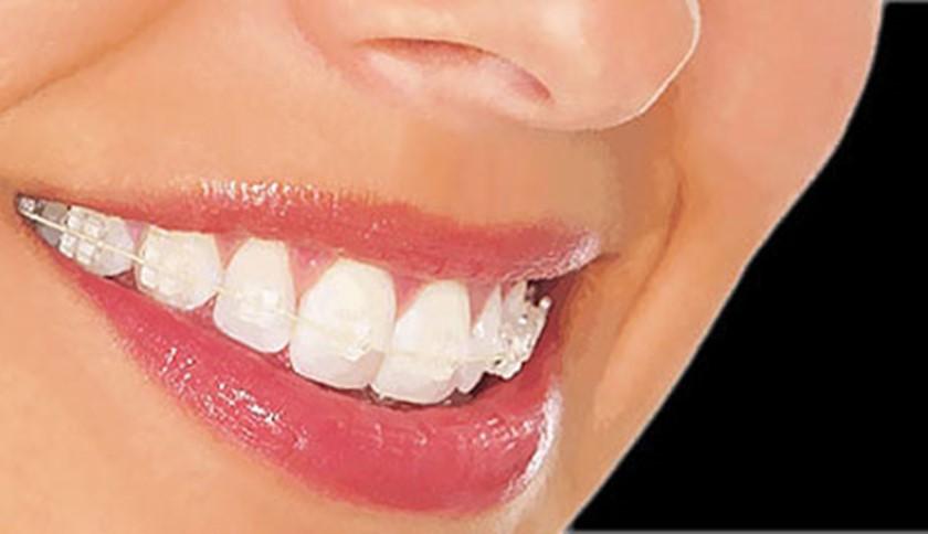 La Ortodoncia invisible ha llegado para quedarse