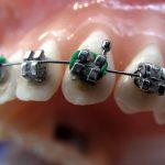 Higiene en ortodoncia