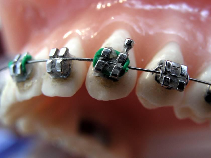 Hábitos de higiene en ortodoncia: 6 consejos que te pueden ayudar