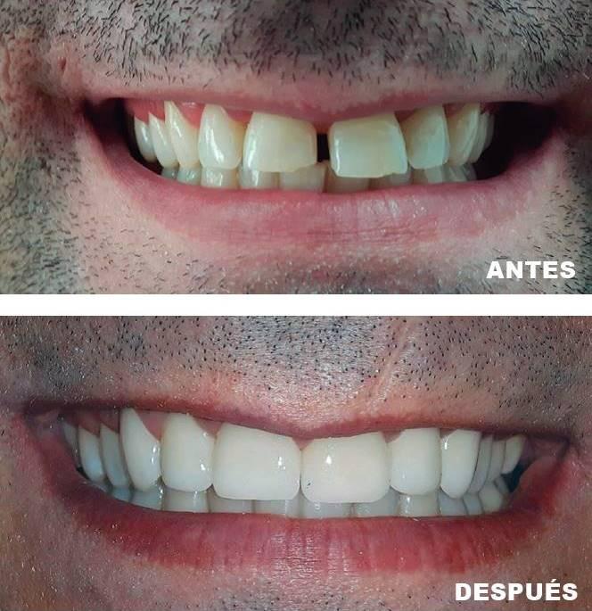 Antes - después | Tratamientos estéticos dentales