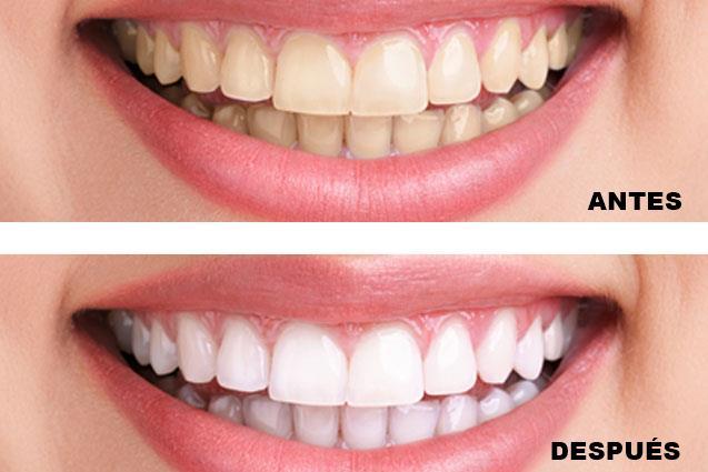 Blanqueamiento dental | Antes - después