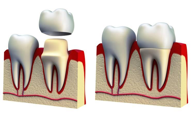 Fundas - Coronas dentales en Villanueva del Pardillo | Madrid Noroeste