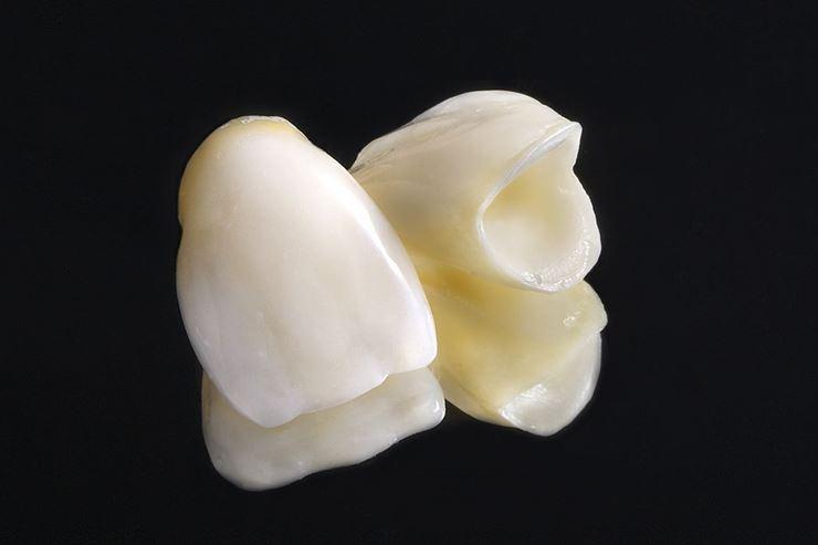 Preguntas frecuentes sobre fundas / coronas dentales