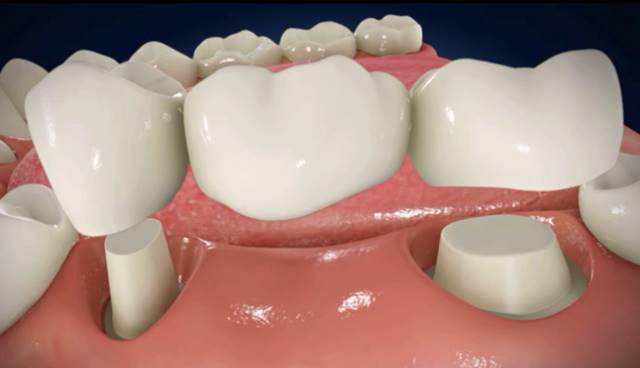 Puente dental sobre dientes naturales