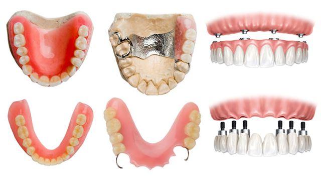 Prótesis dentales más habituales
