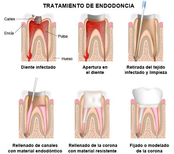 Tratamiento de endodoncia | Villanueva del Pardillo | Madrid noroeste