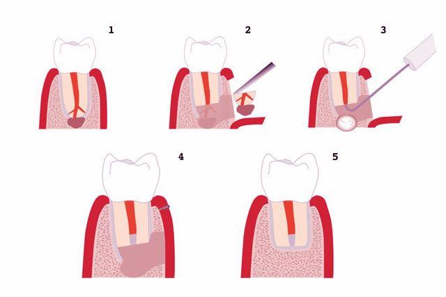 Apicectomía - Cirugía oral