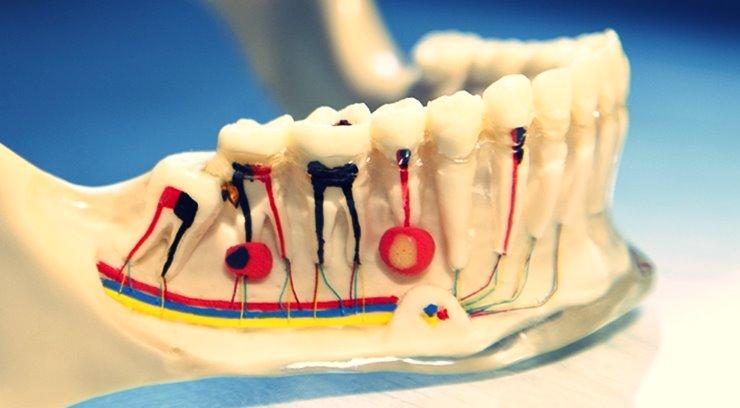Preguntas frecuentes sobre el tratamiento de endodoncia