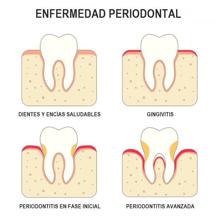 Evolución de la enfermedad periodontal