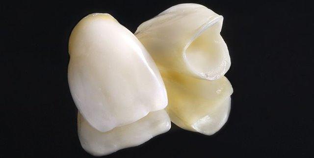 Fundas - Coronas dentales