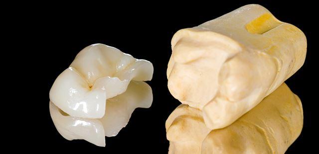 Incrustación dental de cerámica
