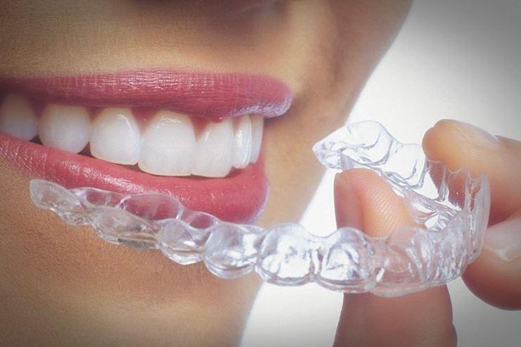 Preguntas frecuentes sobre tratamientos de ortodoncia invisible - Invisalign