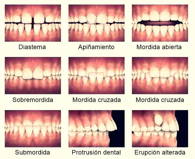Alteraciones frecuentes que se solucionan con tratamientos de ortodoncia