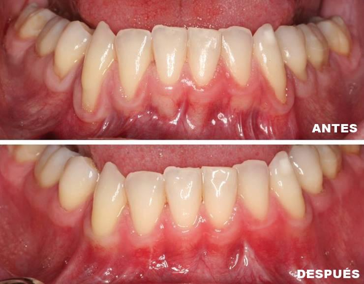 Tratamiento de la enfermedad periodontal | Antes - después