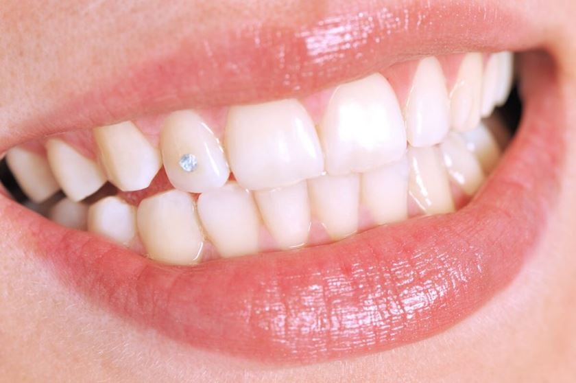 Grills o Joyería dental - Tendencias estética dental