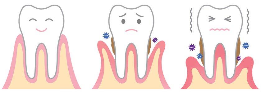 Enfermedad periodontal: 6 cosas que no sabías