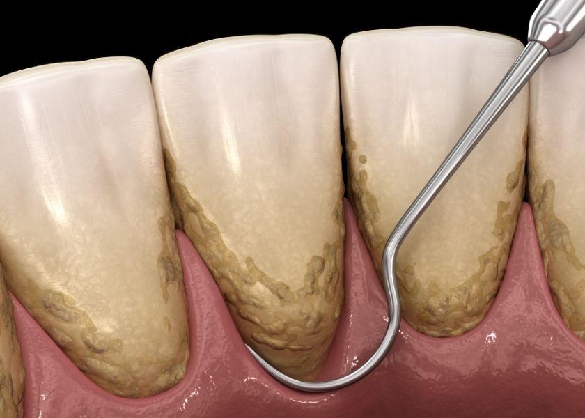 Enfermedad periodontal - Curetaje