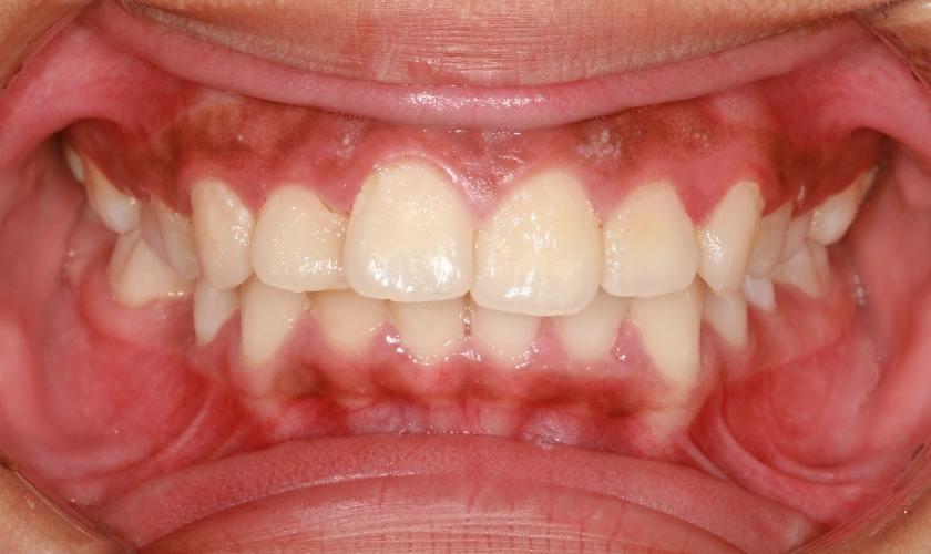 Ejemplo de boca con placa bacteriana o biofilm dental.