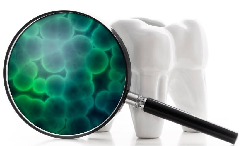 Qué es el biofilm dental y cómo afecta a la salud de tu boca