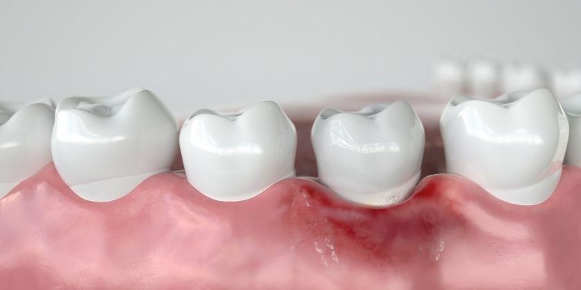 Enfermedad periodontal como posible consecuencia de la depresión