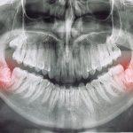 Radiografía: ¿Cuándo es necesario quitar las muelas del juicio?